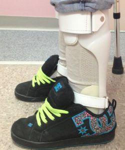 Ankle Foot Orthotics (AFO)